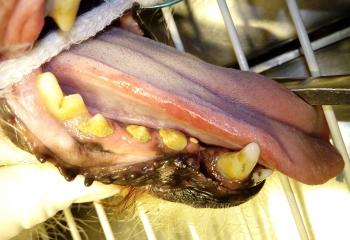 Ulcera da contatto : lesione dovuta al contatto della lingua con il tartaro